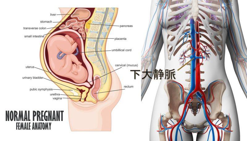 妊娠末期の子宮内と下大静脈の図