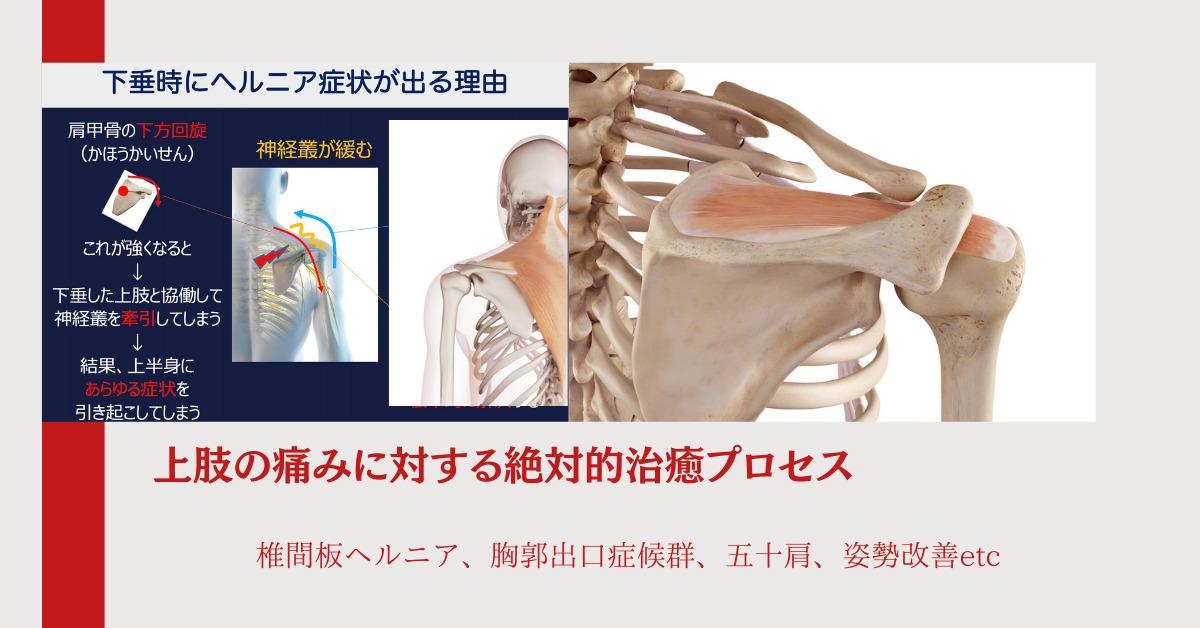 上肢の痛みに対する絶対的治癒プロセス