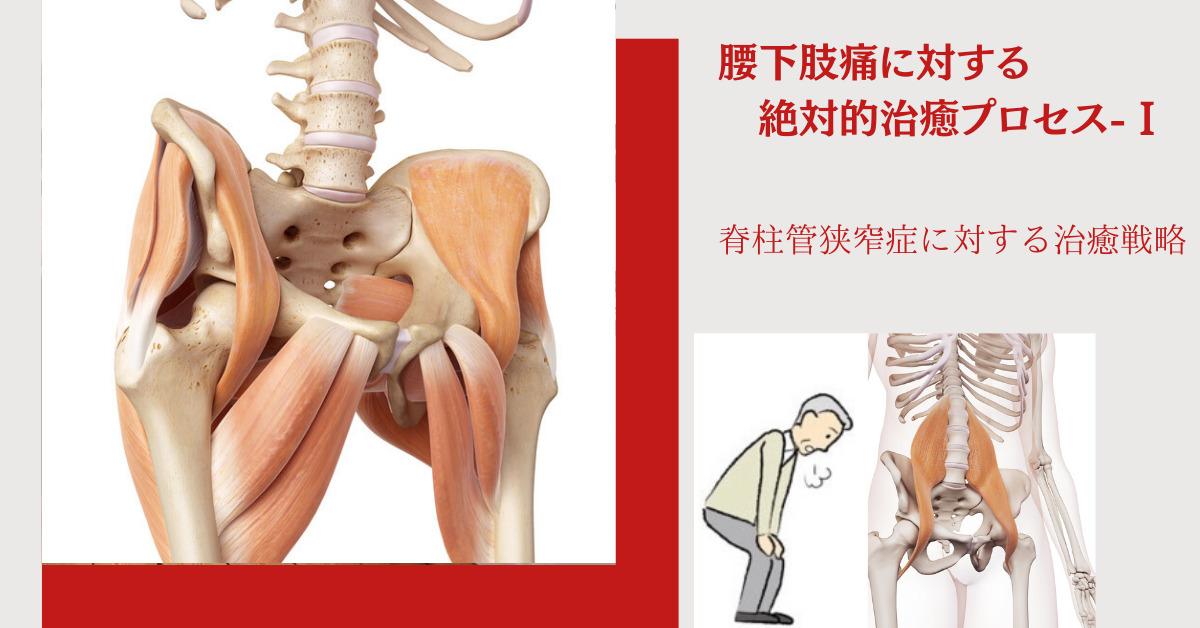 脊柱管狭窄症に対する戦略
